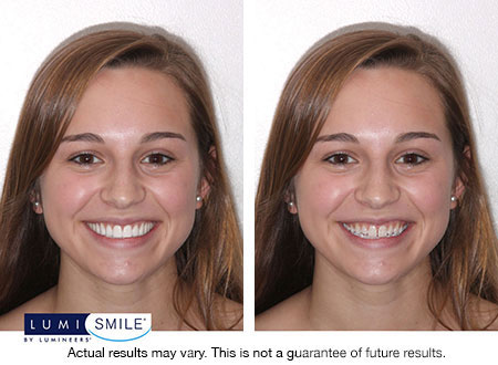Features Of Lumismile Digital Smile Makeover Technology